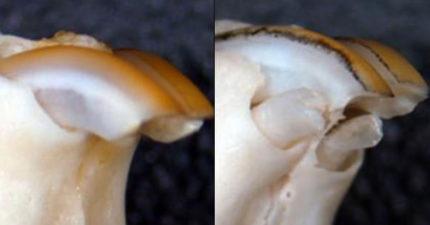 牙壞掉也有救!科學家發現「牙齒再生」方法 治療後「長出一顆牙」