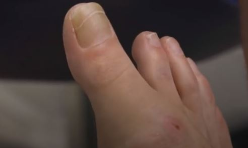 女子擁「超長腳趾」鞋子都不合穿!醫師嚇傻:要切掉嗎