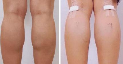 年輕妹流行「切神經」打造美腿!曬成果「瞬間腿變細」醫急警告