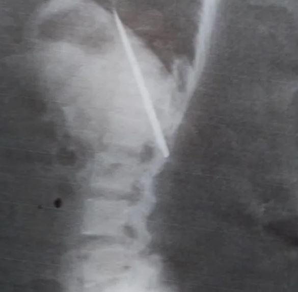 男子14個月來「胸口痛」沒理會 照X光驚見「插了一把刀」