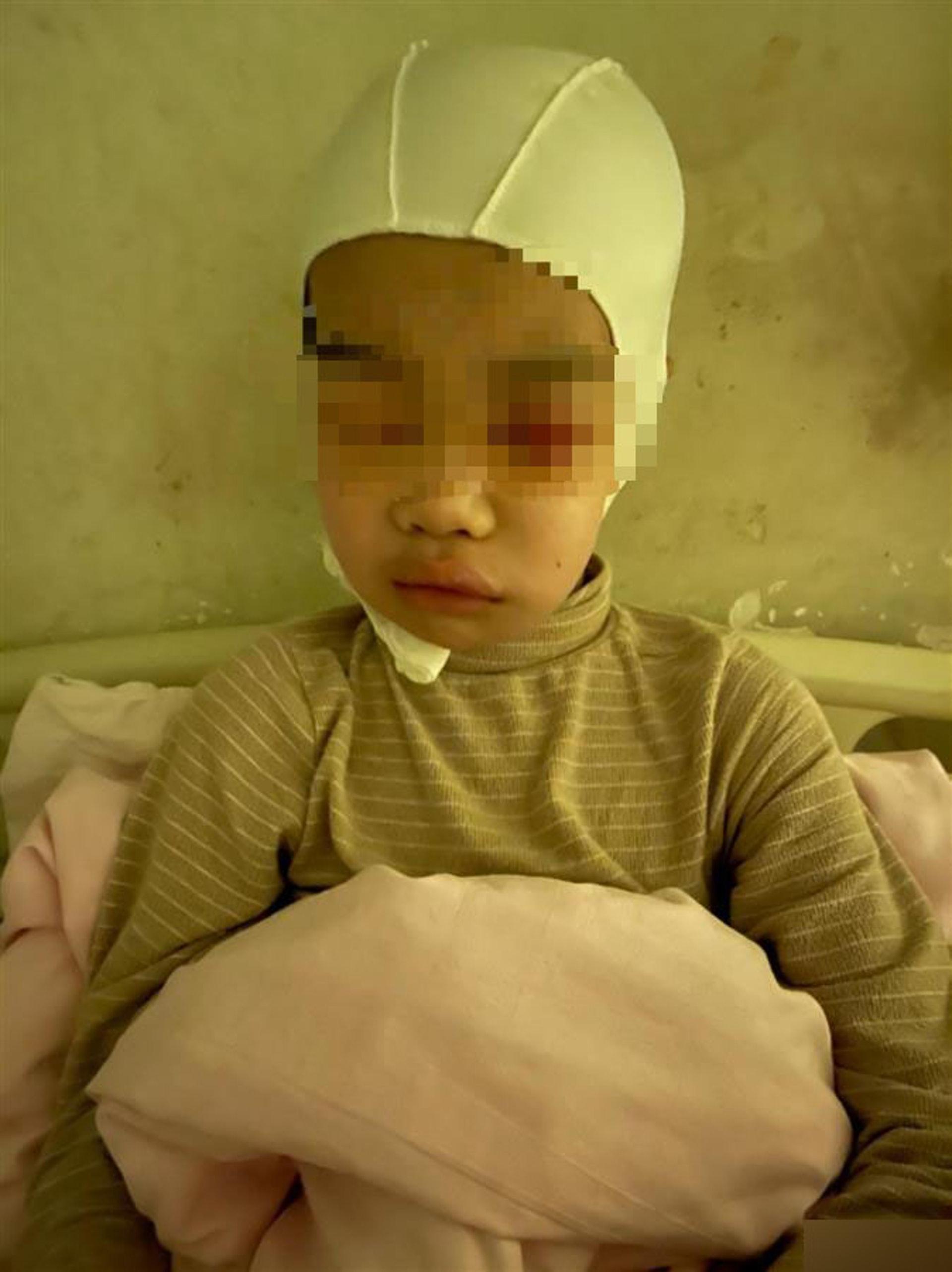 9歲童「上課聊天」遭老師扯頭髮!「頭皮頭骨分離」校方稱:不嚴重