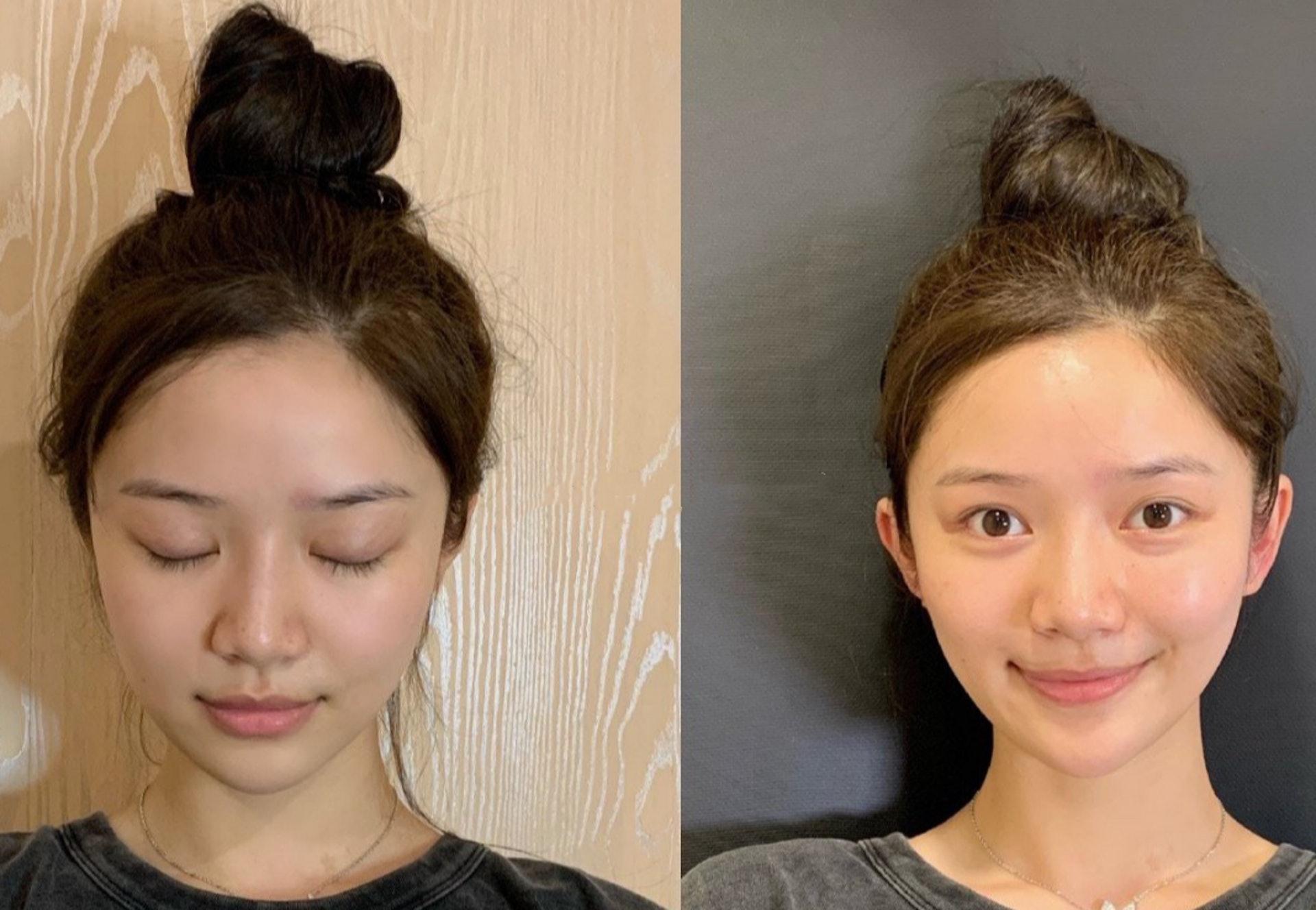 中國女網紅瘋整「精靈耳」小臉 砸87萬換一對「招風耳」