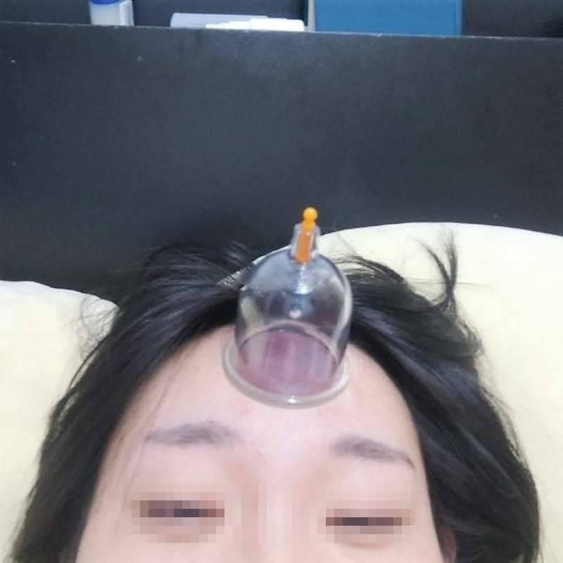 她DIY拔罐「吸額頭」除濕氣!「取下來」網友笑瘋:吸完怨氣重