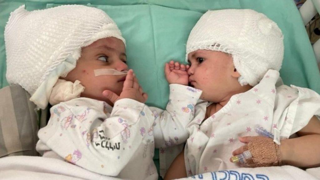 連體嬰分離手術